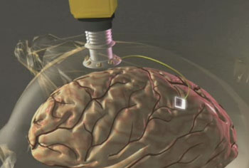 BrainGate Neural Interface System